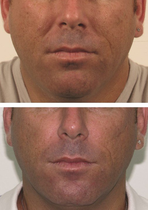 LipoFirm FaceLift for Men Before and After