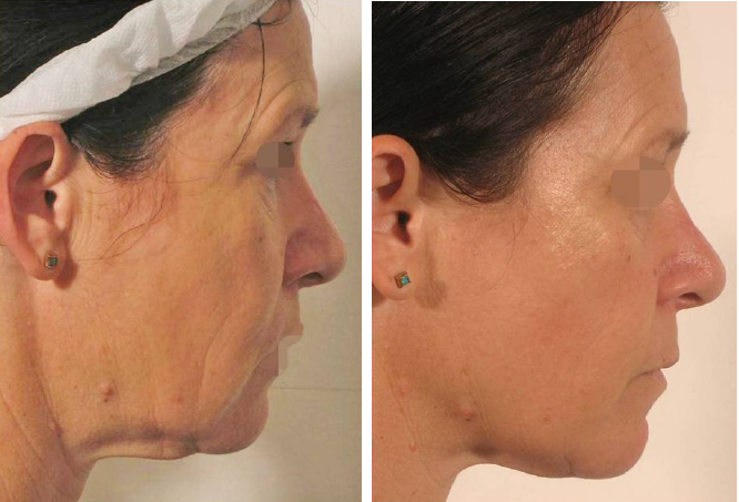 LipoFirm Facelift for Women Before and After