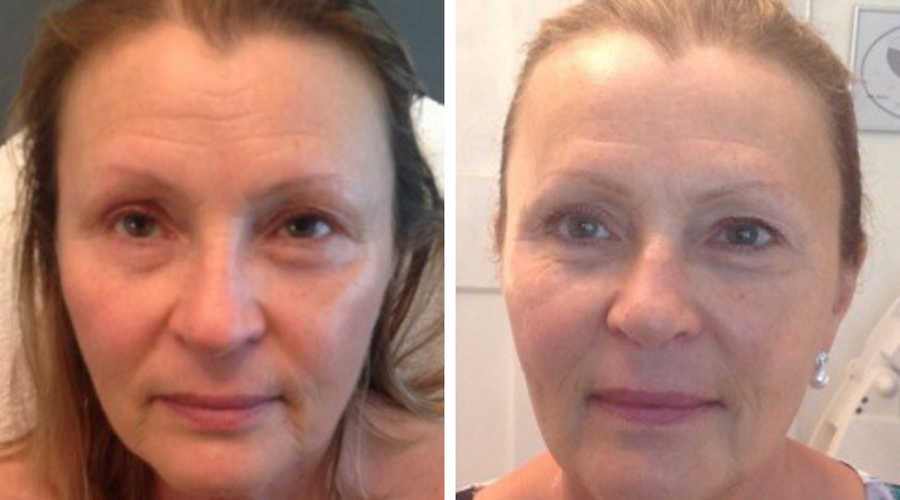 Resurface sun damaged skin resurfacing - before and after