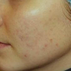 acne skin treatment - after