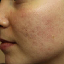 Acne skin treatment - before