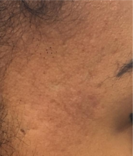 acne skin resurfacing - after Pyramid FaceLift