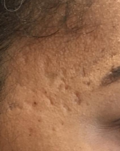 Acne skin resurfacing - before Pyramid FaceLift