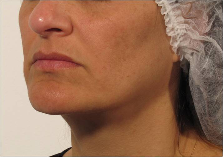 Voluderm Treatment for improved volume, tone, texture - Face after treatment